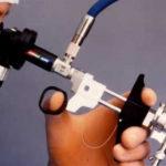 Нужно ли перед ЭКО делать гистероскопию?