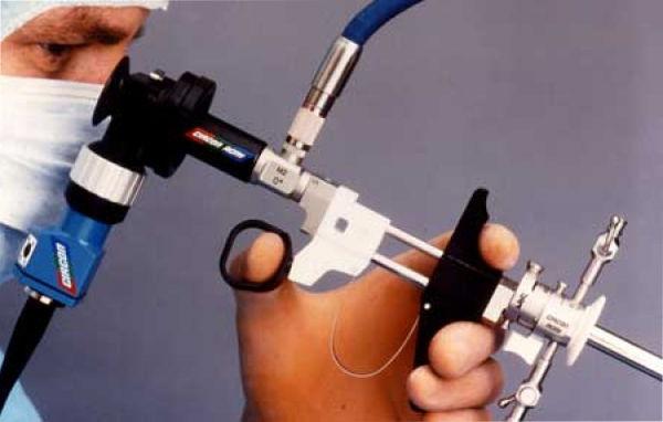 На какой день гистероскопия перед ЭКО