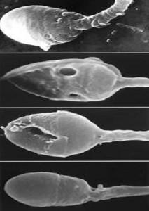 Спермограмма перед ЭКО