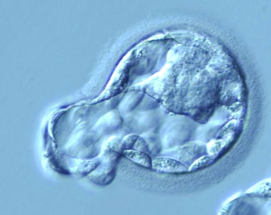 Имплантация эмбрионов при ЭКО