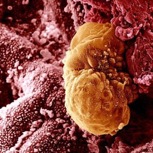 Поздняя имплантация после переноса эмбрионов