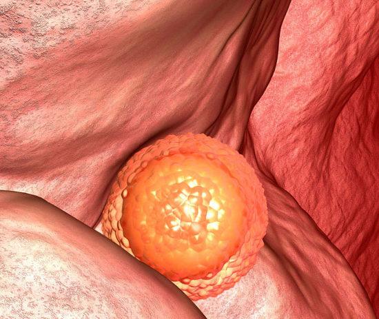 Может ли выпасть эмбрион после переноса