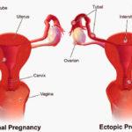 Осложнения ЭКО для женщин во время и после протокола