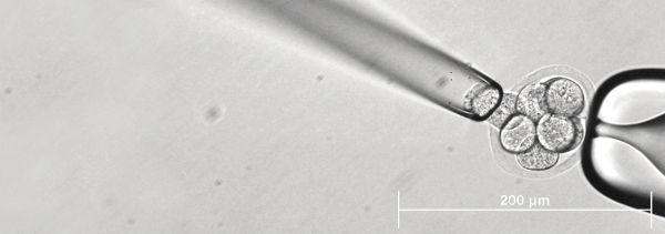 перенос бластоцисты преимплантационная генетическая скрининг как приживается