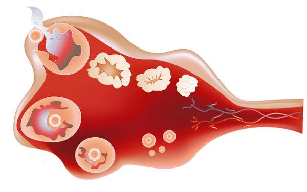 боли в яичниках признак овуляции