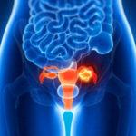 Боль в яичнике при овуляции: норма и патология