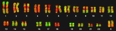 ПГД на 5, 9 и 24 хромосомы