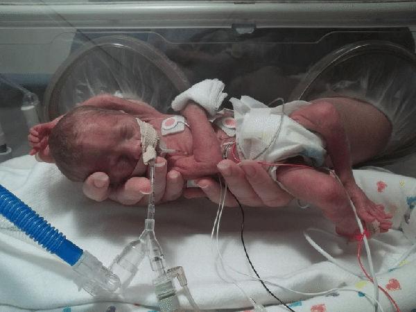 Вес ребёнка на 23 неделе беременности