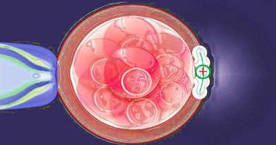 Вспомогательный лазерный хэтчинг перед переносом эмбрионов