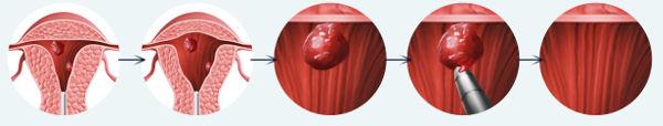полип эндометрия в матке лечение