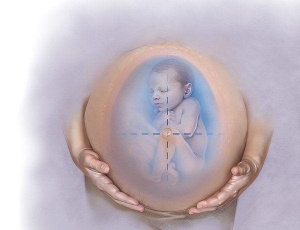 Как определить многоводие при беременности