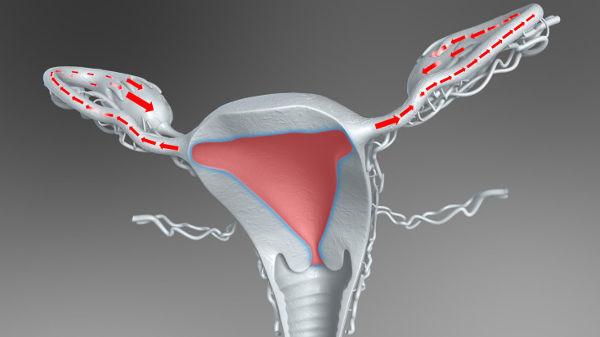 Эндометриоз и беременность можно ли забеременеть