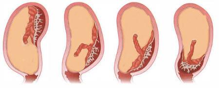 Низкая плацентация при беременности 16 недель