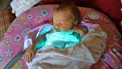 Желтушка у новорожденных лечение в домашних условиях
