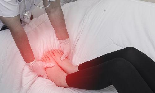 Сильно отекают ноги при беременности что делать