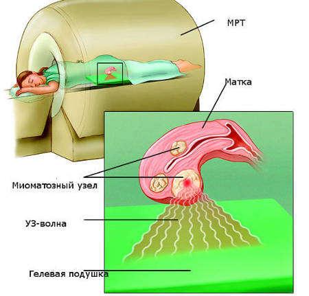 Лечение миомы матки: фуз-аблация