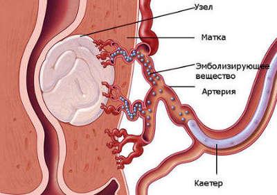 Эмболизация маточных артерий при миоме матки отзывы