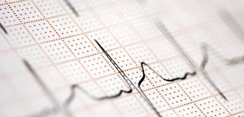Ритм сердца при беременности