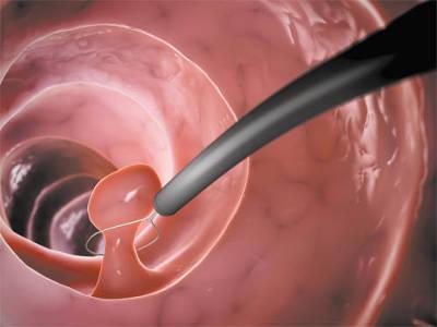 Гистероскопия позволяет диагностировать и вылечить причину бесплодия
