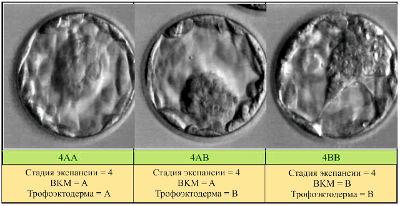 Классификация эмбрионов по качеству