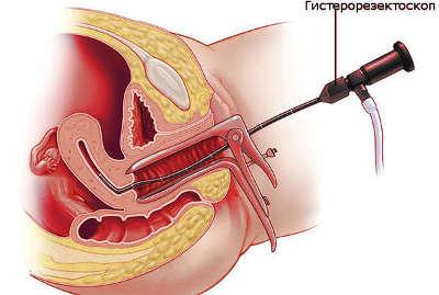 Удаление полипа эндометрия гистероскопия