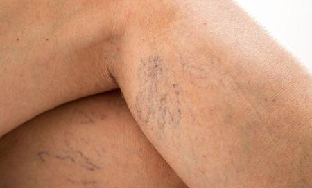 Вены на ногах при беременности что делать