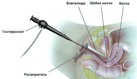 Гиперплазия эндометрия: как лечить