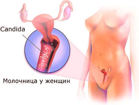 Молочница при беременности 1 триместр