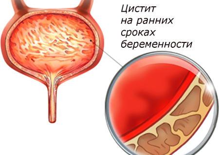 Цистит у беременных на ранних сроках
