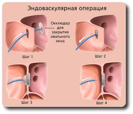 Эндоваскулярная операция - закрытие овального окна