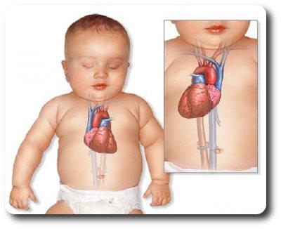 Смещение сердца вправо у новорожденного