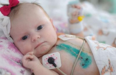 Порок сердца у новорожденного - состояние после операции