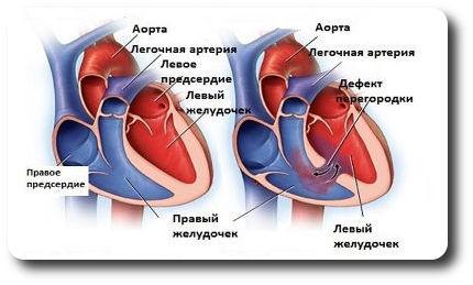 Порок сердца у новорожденного - что это такое
