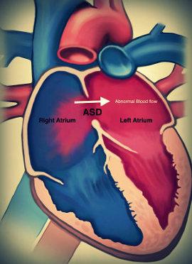 Шумы в сердце у новорожденного: причины