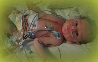 Ребенок после операции на сердце