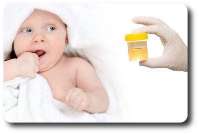 Как правильно поставить мочеприемник девочке грудничку