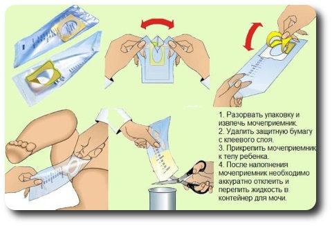 Инструкция-фото: Как пользоваться мочесборником для новорожденных девочек