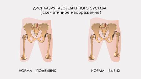 На фото: степени дисплазии тазобедренных суставов схематично