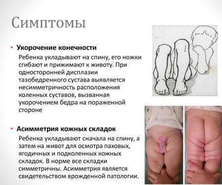 Симптомы дисплазии тазобедренных суставов у грудничков