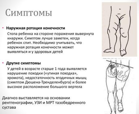 Признаки дисплазии тазобедренных суставов у младенца