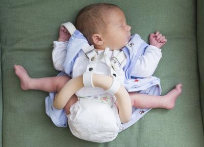Дисплазия у новорожденных как лечить